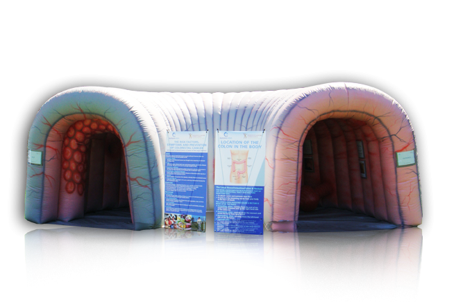 Inflatable Colon (IC)